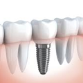 Implants in Coral Springs, FL | Rovismilecenter